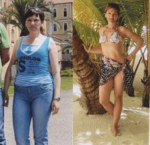 Фото результатов похудения в Центре Холодовой